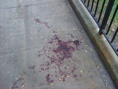 QB Blood on sidewalk